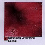 endoscopy - 02062002 - EsophagusLower3rd